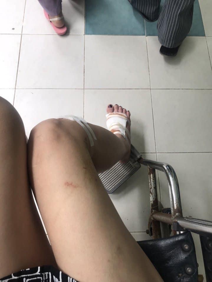 Người mẫu Cao Thùy Linh kể chuyện bị sàm sỡ vùng nhạy cảm khi đang chờ đèn đỏ-4