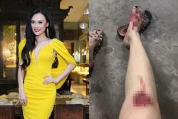 Người mẫu Cao Thùy Linh kể chuyện bị sàm sỡ vùng nhạy cảm khi đang chờ đèn đỏ