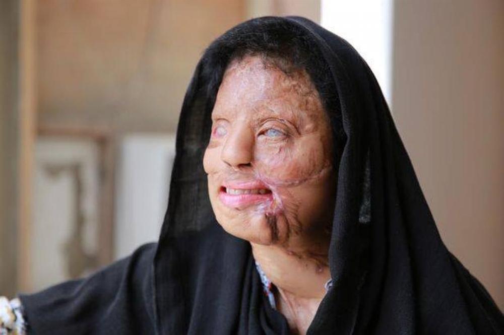 Cô gái bị tạt axit thắng ở Ai là triệu phú 8 năm trước giờ ra sao-4