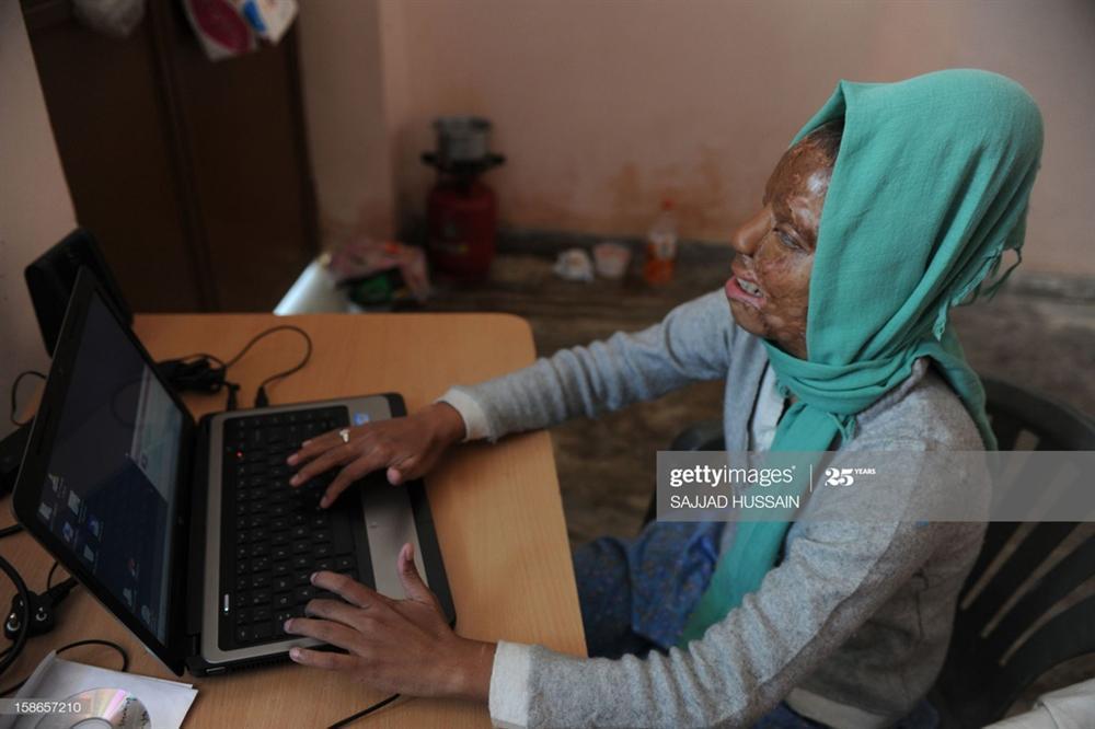 Cô gái bị tạt axit thắng ở Ai là triệu phú 8 năm trước giờ ra sao-6