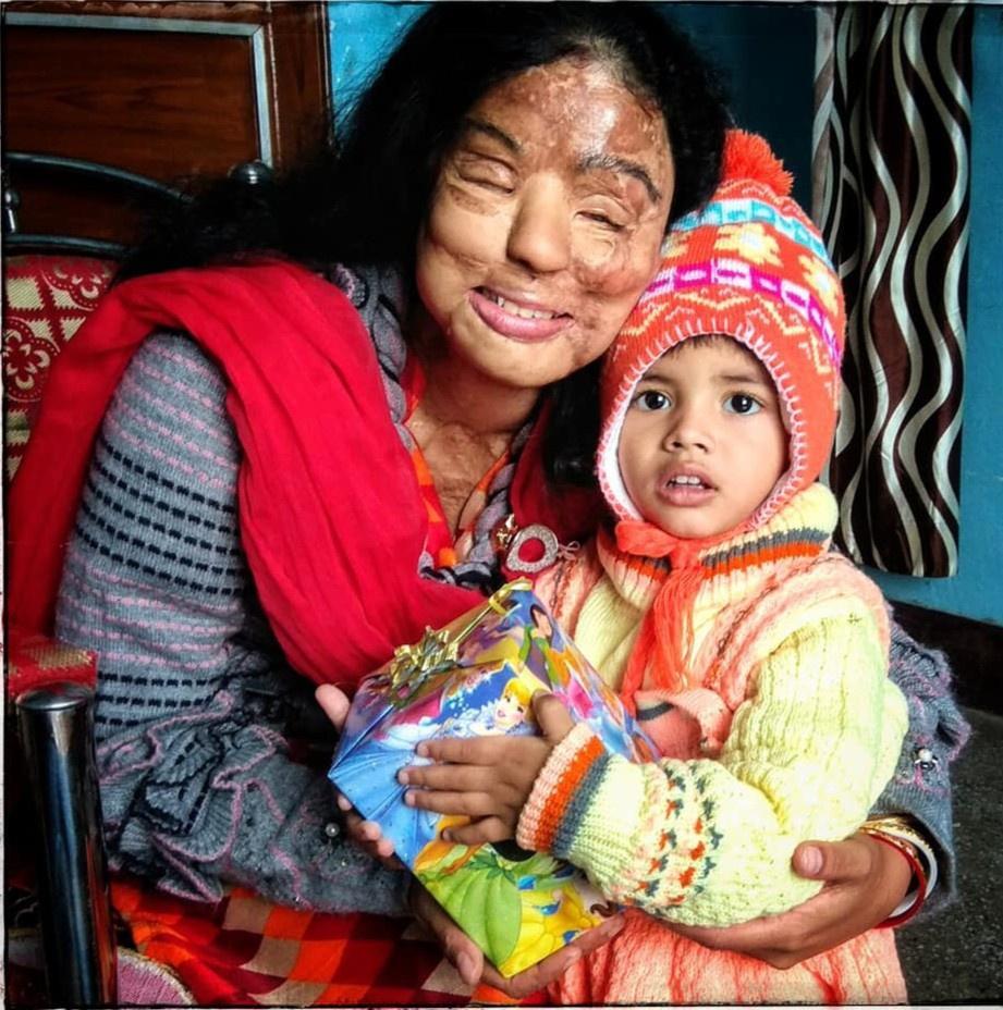 Cô gái bị tạt axit thắng ở Ai là triệu phú 8 năm trước giờ ra sao-10
