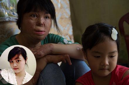 Cuộc sống của cô gái trẻ Hà Nội sau 4 năm bị chồng tẩm xăng thiêu sống