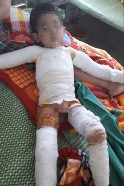 Bé trai 5 tuổi bỏng nặng toàn thân do nghịch bật lửa