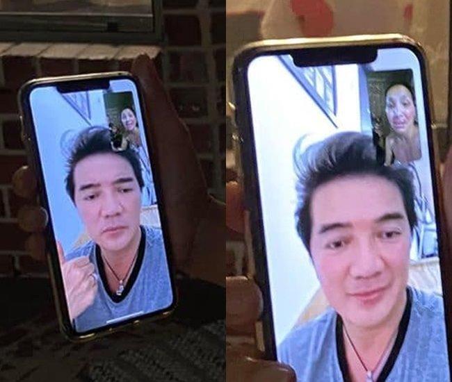 Gương mặt bỏng nặng của Hồng Ngọc lộ rõ qua màn hình facetime khiến ai nhìn cũng xót-2