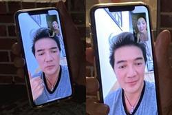 Gương mặt bỏng nặng của Hồng Ngọc lộ rõ qua màn hình facetime khiến ai nhìn cũng xót