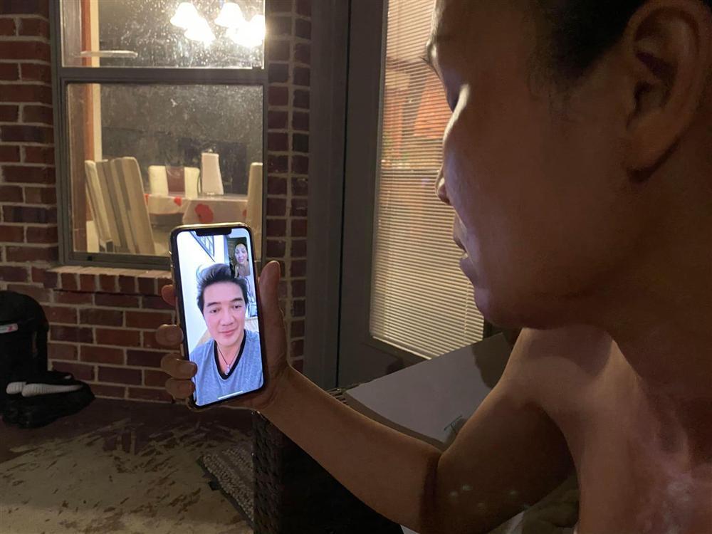 Gương mặt bỏng nặng của Hồng Ngọc lộ rõ qua màn hình facetime khiến ai nhìn cũng xót-3