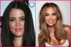 Khloé Kardashian bị chế nhạo vì chỉnh ảnh đến khó nhận ra