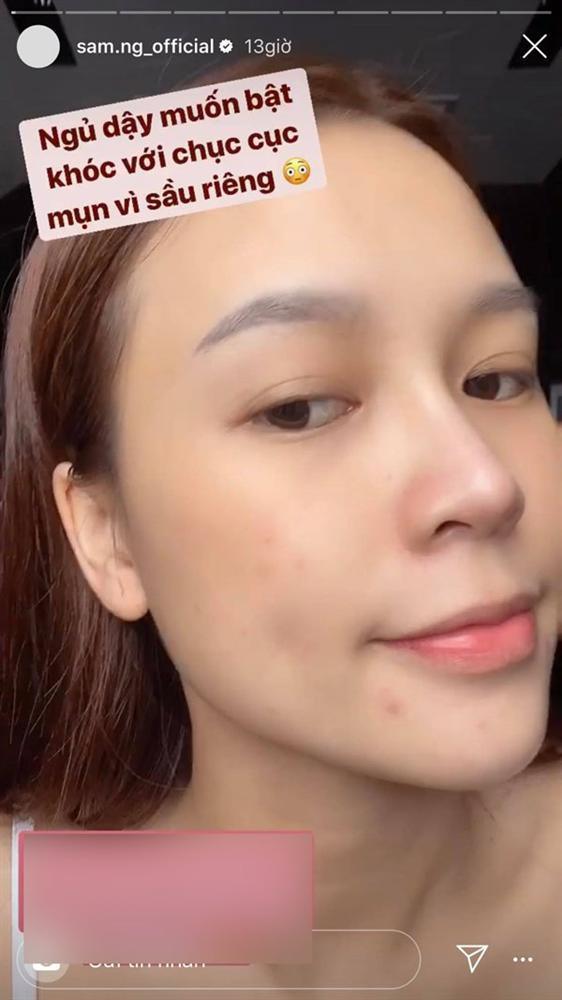 SAO MAKE OVER: Sam lộ mặt mụn - Ji Yeon T-ara trang điểm hai hàng lông mày khó hiểu-2