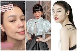 SAO MAKE OVER: Sam lộ mặt mụn - Ji Yeon T-ara trang điểm hai hàng lông mày khó hiểu