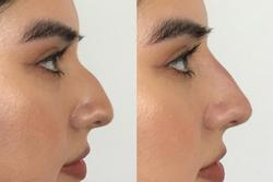 Bác sĩ phát minh ra tiêm filler chia sẻ 5 sự thật về việc sửa mũi