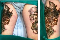 Hà Nội: Nam thanh niên 'nát bét' hai đùi vì biến chứng xóa xăm