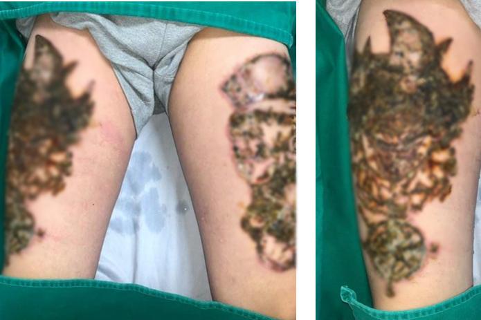 Những ca xóa xăm vừa đau đớn vừa hỏng da vĩnh viễn khiến bạn cần cân nhắc khi xăm hình-1