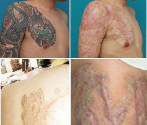 Những ca xóa xăm vừa đau đớn vừa hỏng da vĩnh viễn khiến bạn cần cân nhắc khi xăm hình-2