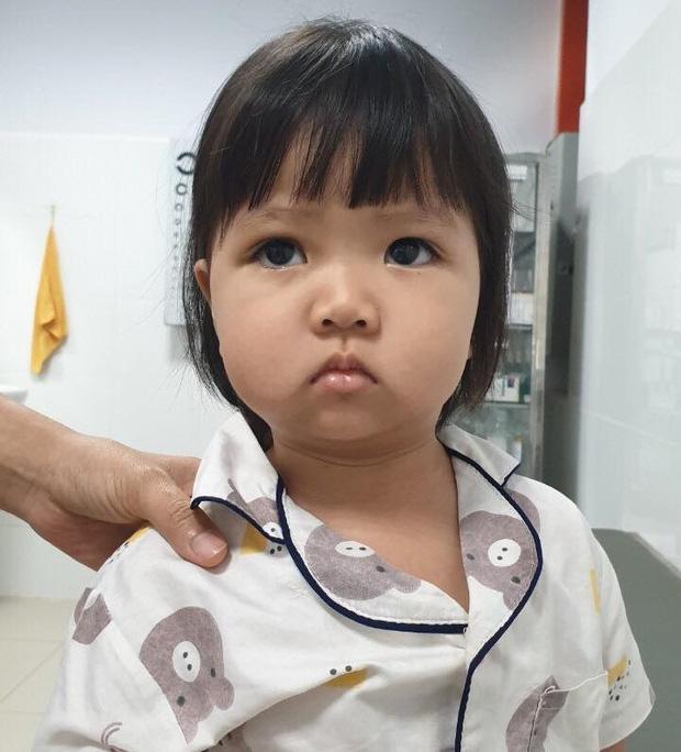 Đang ăn kem thì vấp ngã, bé gái 2 tuổi bị que kem chọc xuyên hốc mắt-2
