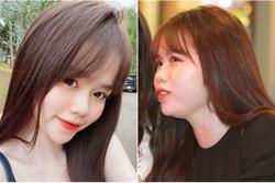 Bị soi nọng cằm, chi hơn 100 triệu làm răng vẫn xấu, bạn gái mới Quang Hải phản ứng dễ thương