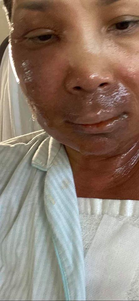 NGOẠN MỤC: Gương mặt Hồng Ngọc hồi phục cực nhanh sau khi biến dạng vì bỏng nặng-3