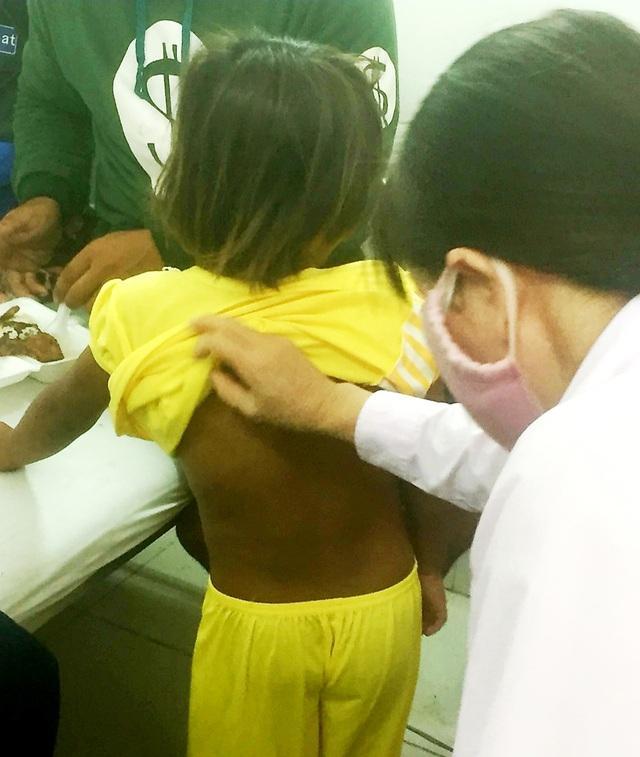 Cha đẻ bạo hành tàn nhẫn con gái ở Sóc Trăng: Nạn nhân 6 tuổi nhập viện trong tình trạng đa chấn thương-2