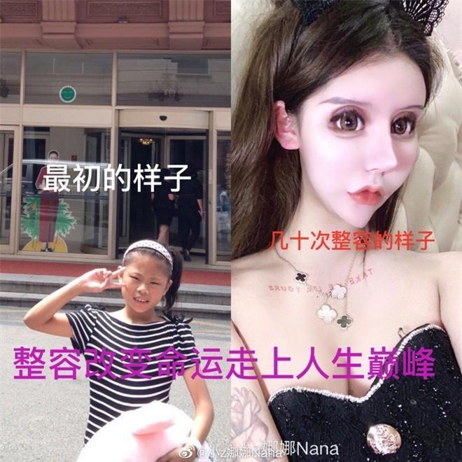 Phát hoảng trước gương mặt như búp bê hỏng vì phẫu thuật thẩm mỹ của cô gái Trung Quốc-2