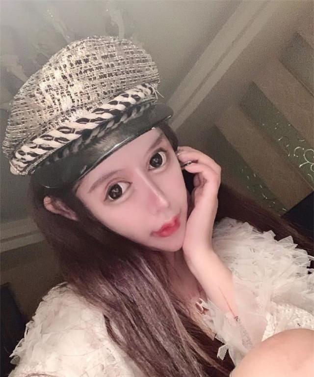 Phát hoảng trước gương mặt như búp bê hỏng vì phẫu thuật thẩm mỹ của cô gái Trung Quốc-1