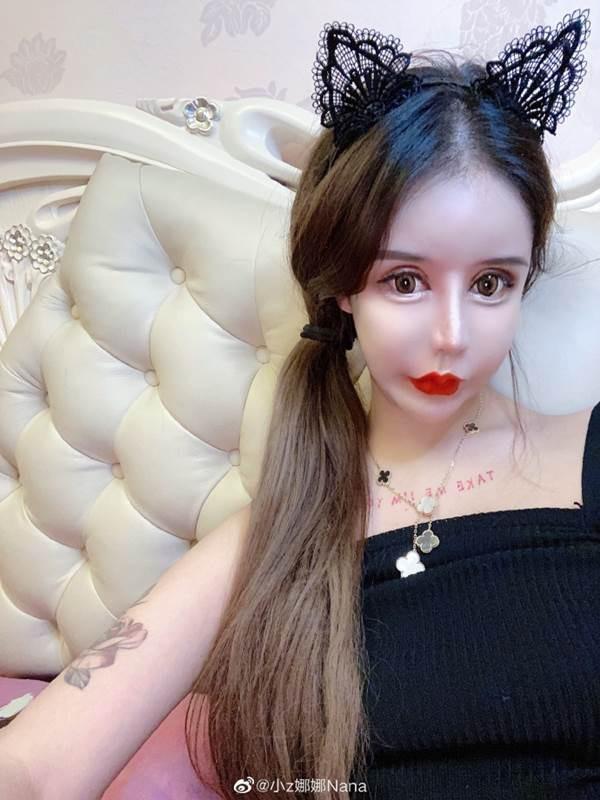 Phát hoảng trước gương mặt như búp bê hỏng vì phẫu thuật thẩm mỹ của cô gái Trung Quốc-7