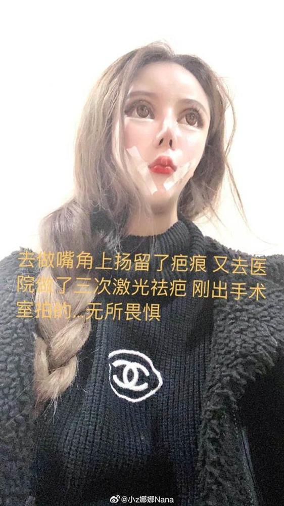 Phát hoảng trước gương mặt như búp bê hỏng vì phẫu thuật thẩm mỹ của cô gái Trung Quốc-8