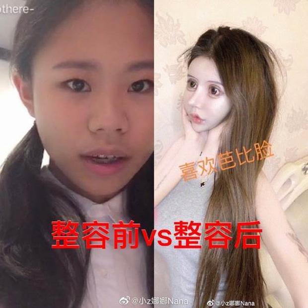 Phát hoảng trước gương mặt như búp bê hỏng vì phẫu thuật thẩm mỹ của cô gái Trung Quốc-3