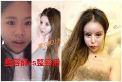 Phát hoảng trước gương mặt như búp bê hỏng vì phẫu thuật thẩm mỹ của cô gái Trung Quốc