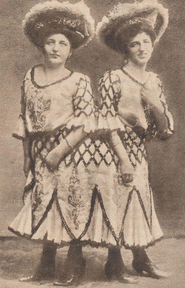 Cặp chị em song sinh dính liền đầu tiên trong lịch sử sinh con, gây thị phi vì quan hệ-2