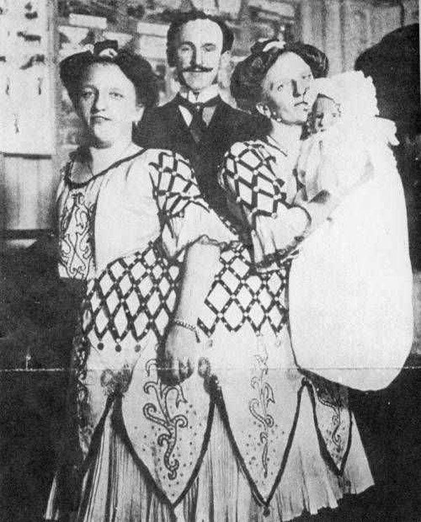 Cặp chị em song sinh dính liền đầu tiên trong lịch sử sinh con, gây thị phi vì quan hệ-3