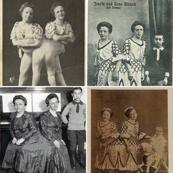 Cặp chị em song sinh dính liền đầu tiên trong lịch sử sinh con, gây thị phi vì quan hệ-4