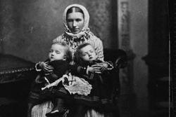 Cặp chị em song sinh dính liền đầu tiên trong lịch sử sinh con, gây thị phi vì quan hệ