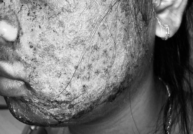 Cô gái 17 tuổi mặt sưng phù, chảy mủ vàng vì dùng sản phẩm thay da sinh học collagen trên mạng-1