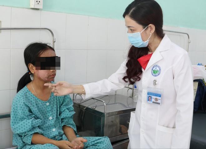 Cô gái 17 tuổi mặt sưng phù, chảy mủ vàng vì dùng sản phẩm thay da sinh học collagen trên mạng-2