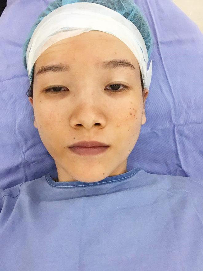 Cuộc sống thay đổi chóng mặt của cô gái mắt lươn ở Nghệ An sau 3 năm nổi đình đám MXH-2