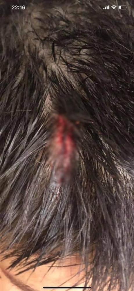 Hà Nội: Chổi lau nhà rơi từ tầng 5 chung cư cao cấp khiến bé trai vỡ đầu phải nhập viện-2