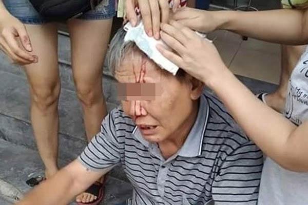 Người Hà Nội chết khiếp vì đồ vật bất thình lình bay từ chung cư xuống vỡ đầu-2