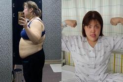 'Thánh ăn' Hàn Quốc Yang Soobin mắc ung thư tuyến giáp sau nỗ lực giảm 33kg