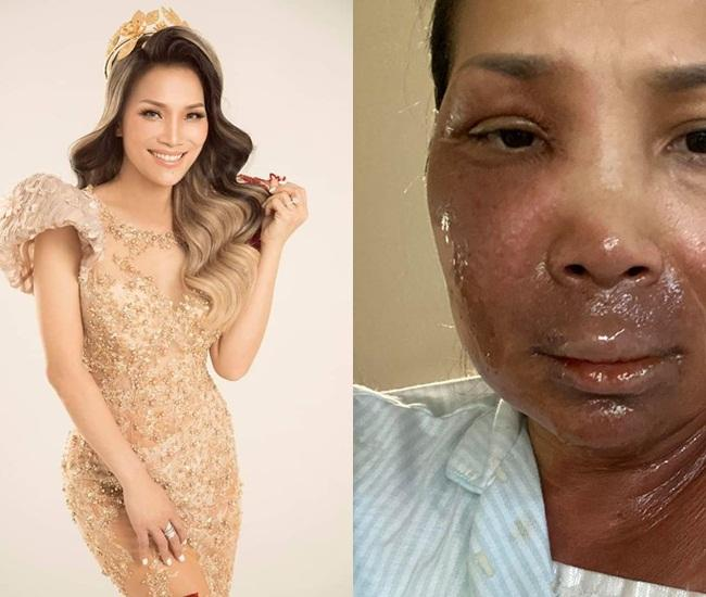 Cả showbiz chúc mừng Hồng Ngọc hồi phục thần kỳ sau sự cố bỏng nặng-6