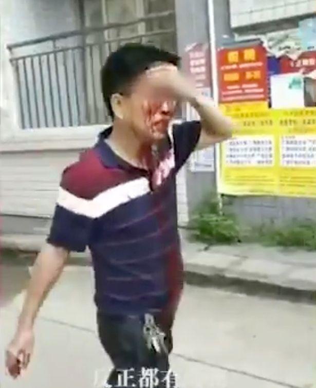 Bảo vệ trường học Trung Quốc bất ngờ dùng dao tấn công điên cuồng khiến 40 người bị thương-3