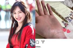 Cựu thành viên AOA cắt cổ tay, có dấu hiệu bất thường về tinh thần?