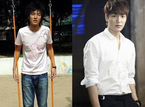 Lee Min Ho bị đào mộ loạt ảnh thời còn phèn: Mặt rỗ, gầy gò, style như Khá Bảnh-7