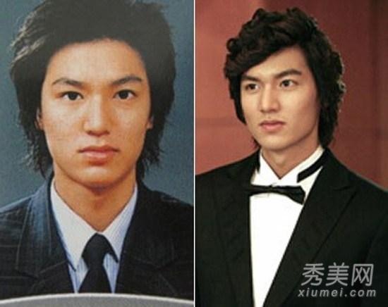 Lee Min Ho bị đào mộ loạt ảnh thời còn phèn: Mặt rỗ, gầy gò, style như Khá Bảnh-6