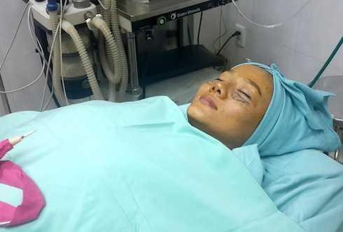Loạt hình ảnh dàn sao Việt phẫu thuật thẩm mỹ gây nỗi sợ hãi đến ám ảnh-12