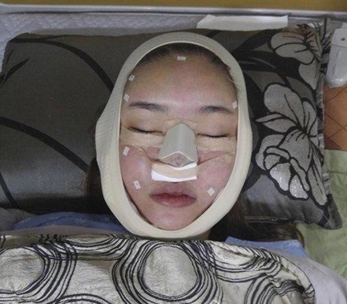 Loạt hình ảnh dàn sao Việt phẫu thuật thẩm mỹ gây nỗi sợ hãi đến ám ảnh-10