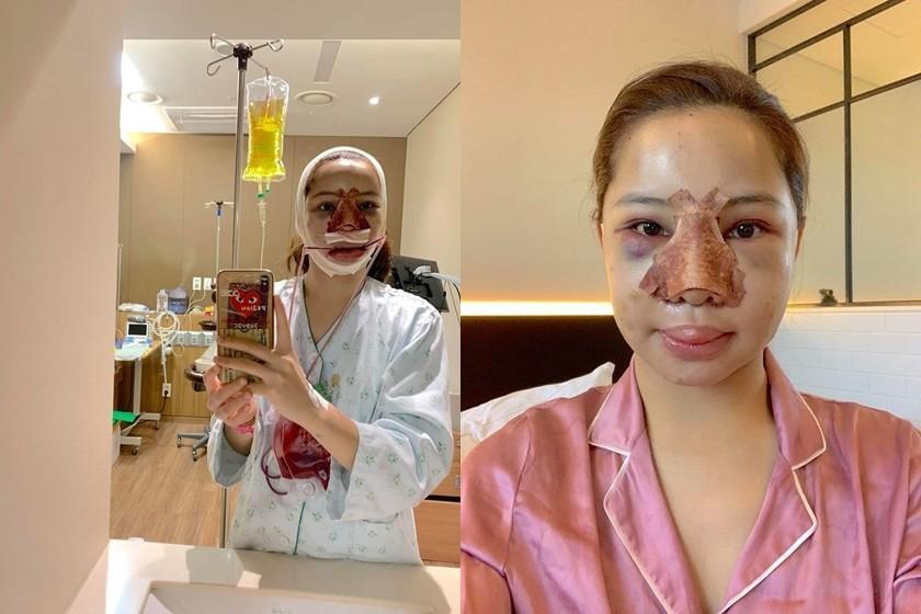 Loạt hình ảnh dàn sao Việt phẫu thuật thẩm mỹ gây nỗi sợ hãi đến ám ảnh-9