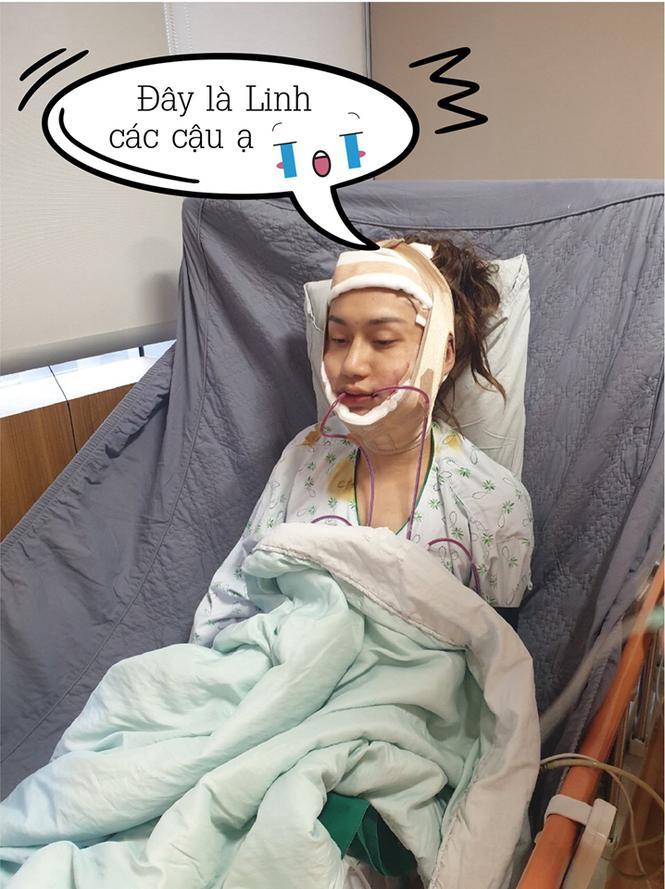 Loạt hình ảnh dàn sao Việt phẫu thuật thẩm mỹ gây nỗi sợ hãi đến ám ảnh-1