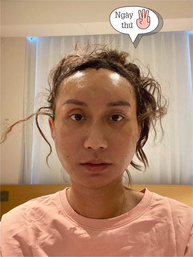 Loạt hình ảnh dàn sao Việt phẫu thuật thẩm mỹ gây nỗi sợ hãi đến ám ảnh-2