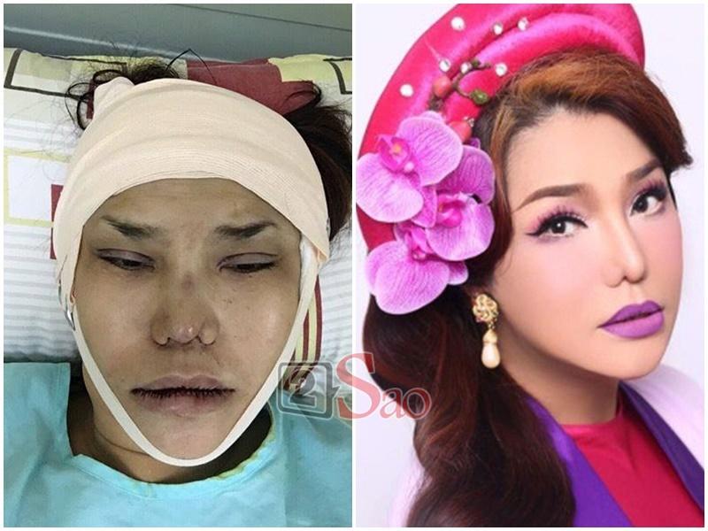 Loạt hình ảnh dàn sao Việt phẫu thuật thẩm mỹ gây nỗi sợ hãi đến ám ảnh-6