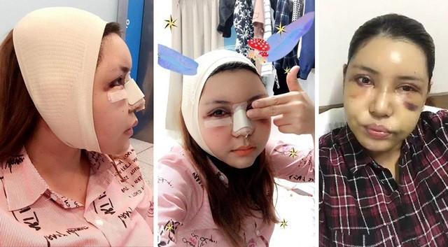 Loạt hình ảnh dàn sao Việt phẫu thuật thẩm mỹ gây nỗi sợ hãi đến ám ảnh-7