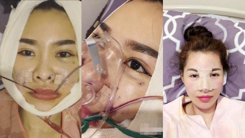 Loạt hình ảnh dàn sao Việt phẫu thuật thẩm mỹ gây nỗi sợ hãi đến ám ảnh-5